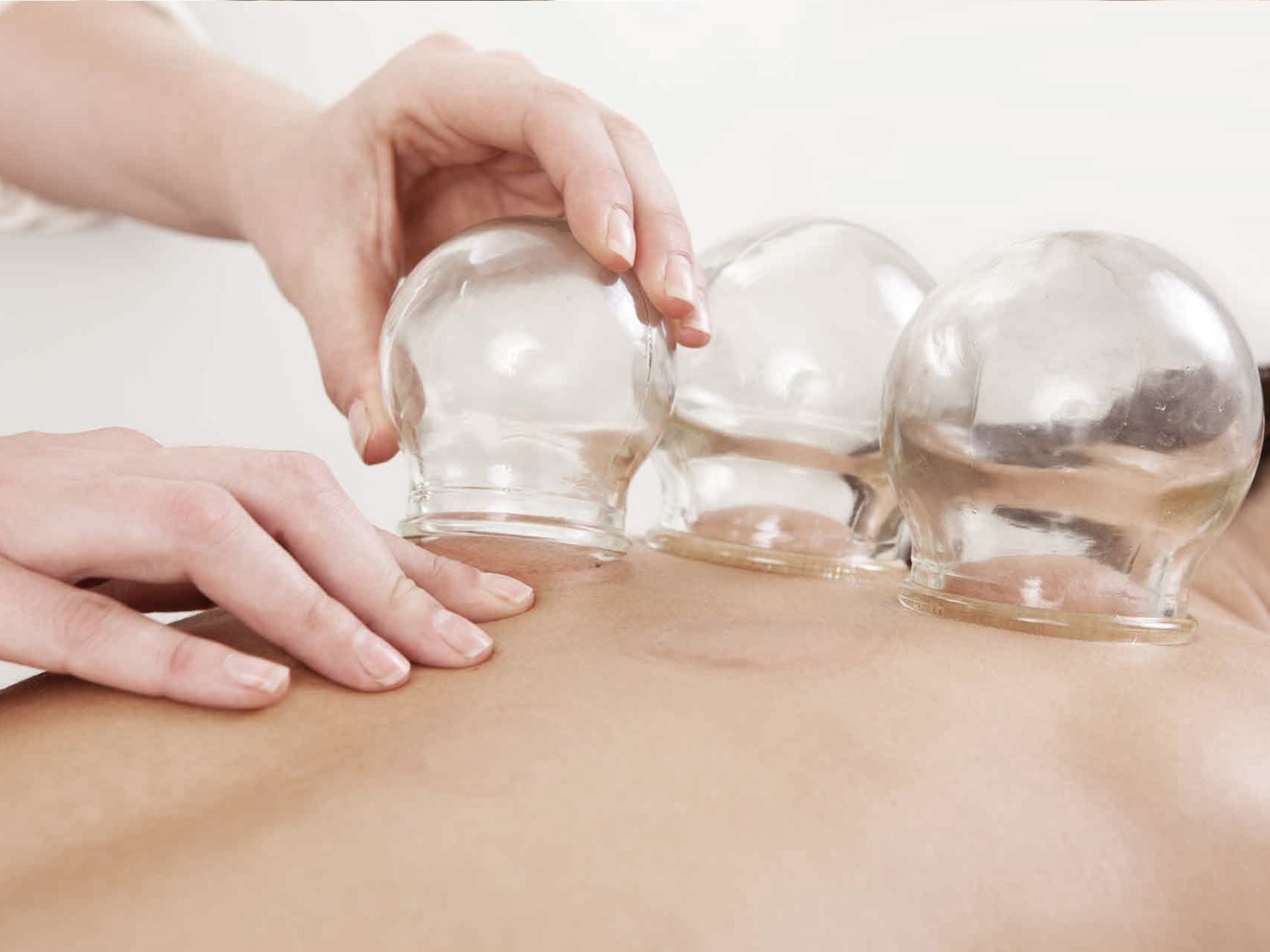CuppingTherapy_services